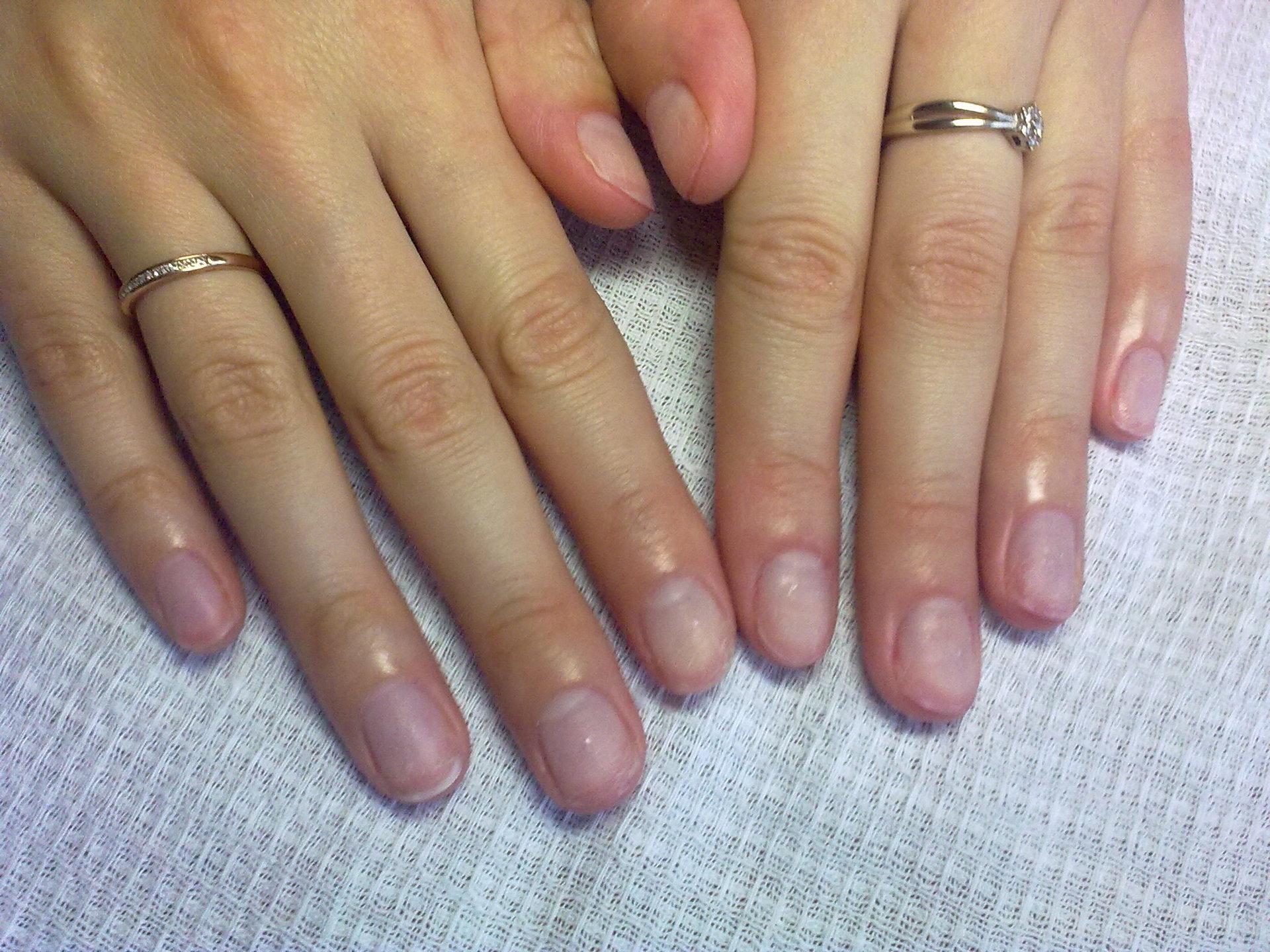 Коррекция коротких ногтей фото