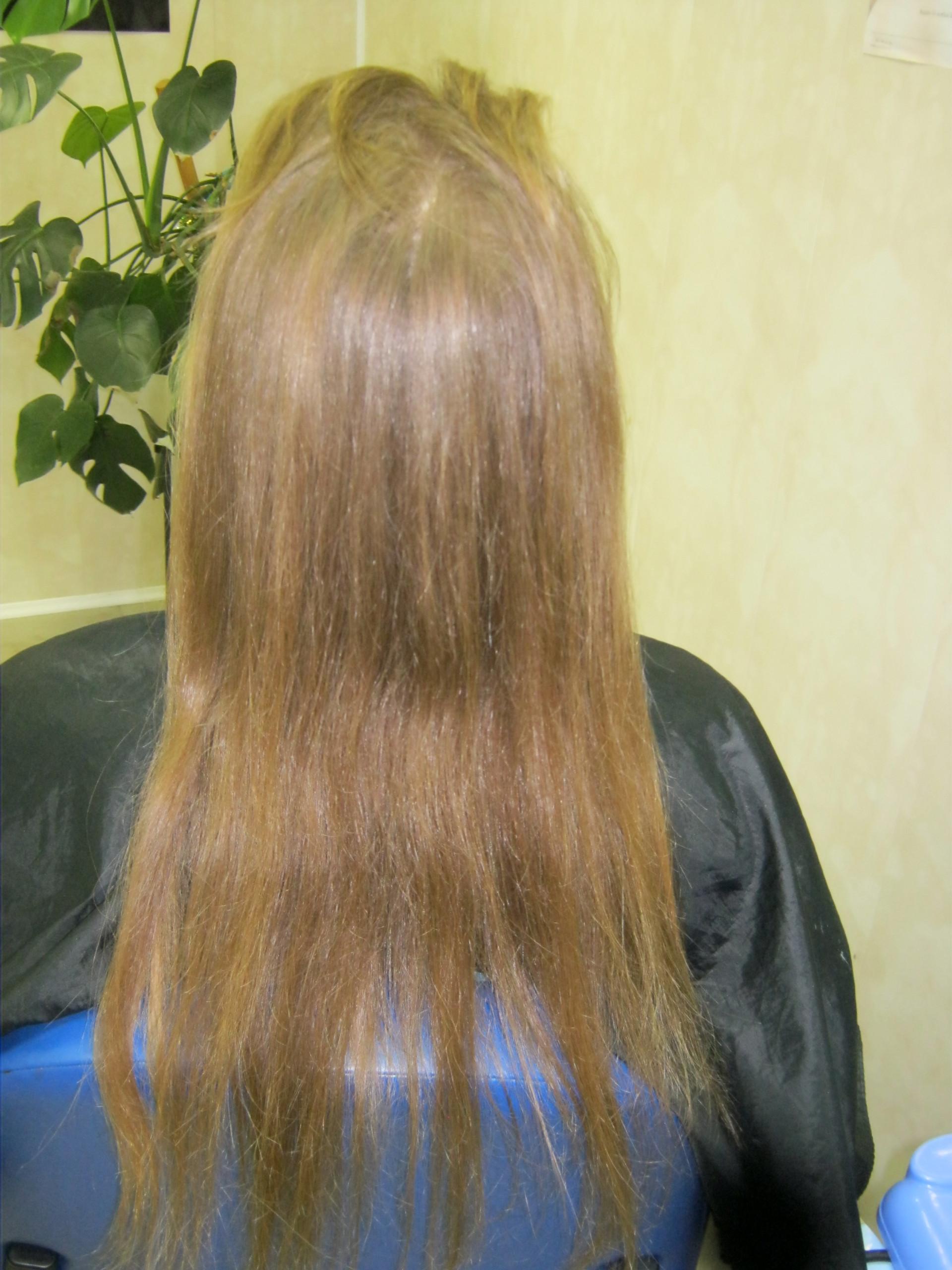 Народное средство и витамины от выпадение волос