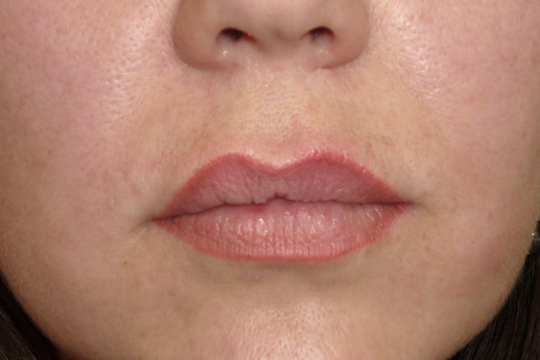 аллергия на татуаж губ