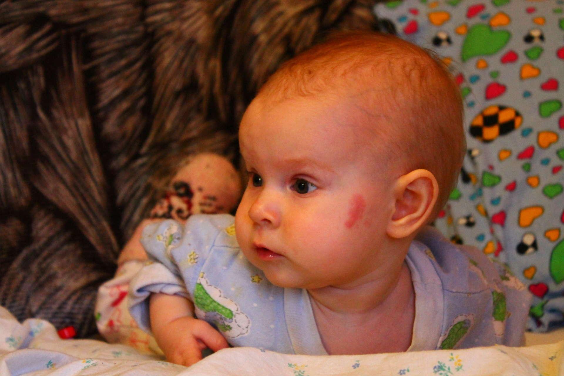 Голова ребенка в 2 месяца фото