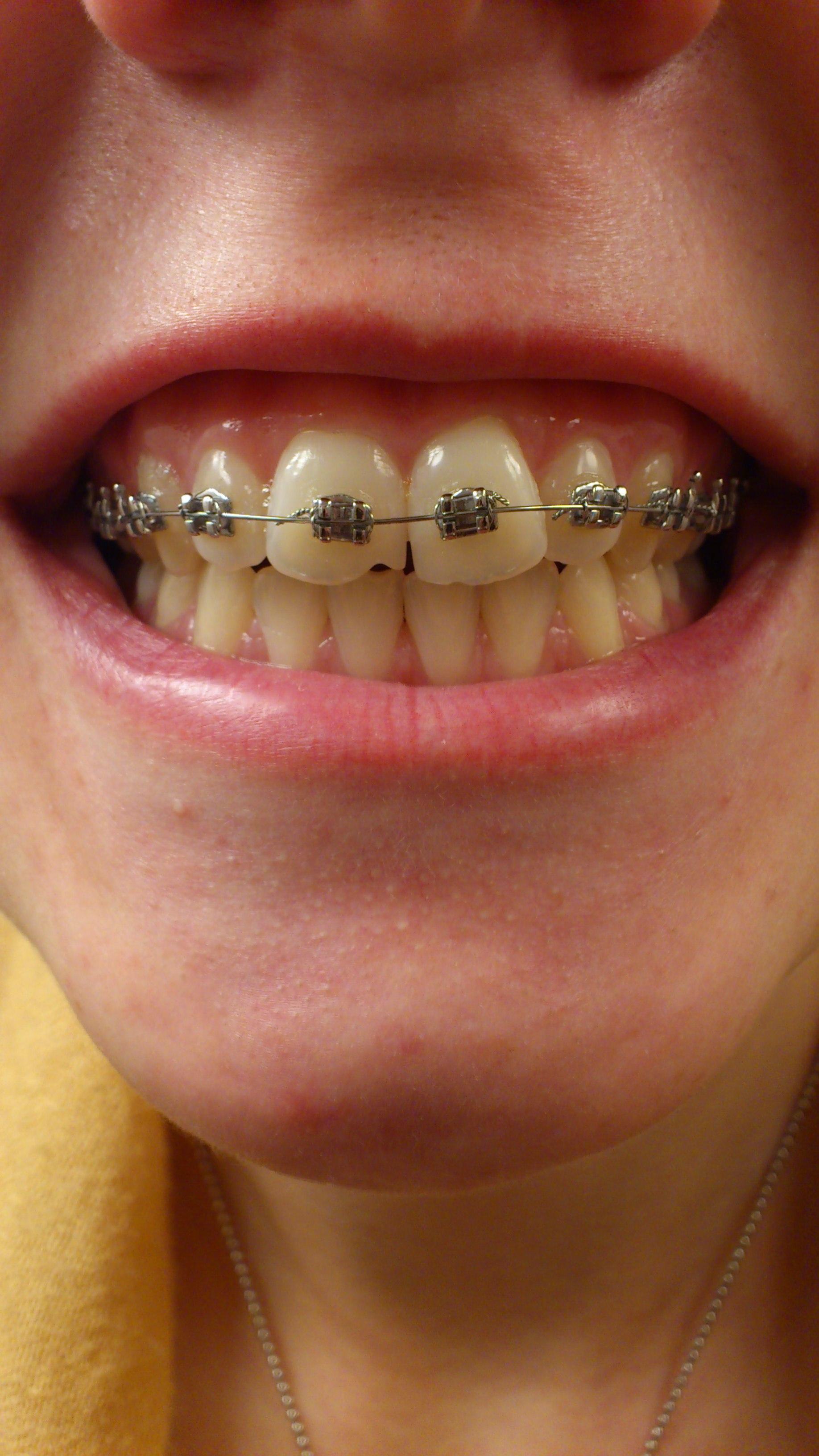 Какими брекетами быстрее выровнять зубы