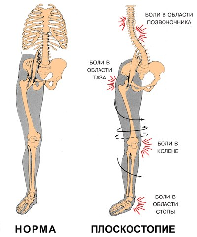 Плоскостопие: симптомы