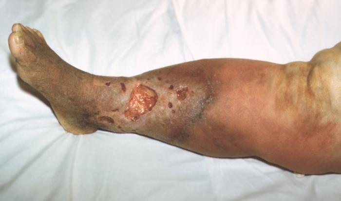 некроз тканей на ноге фото