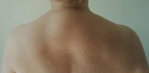 Как лечить килу у человека фото 92