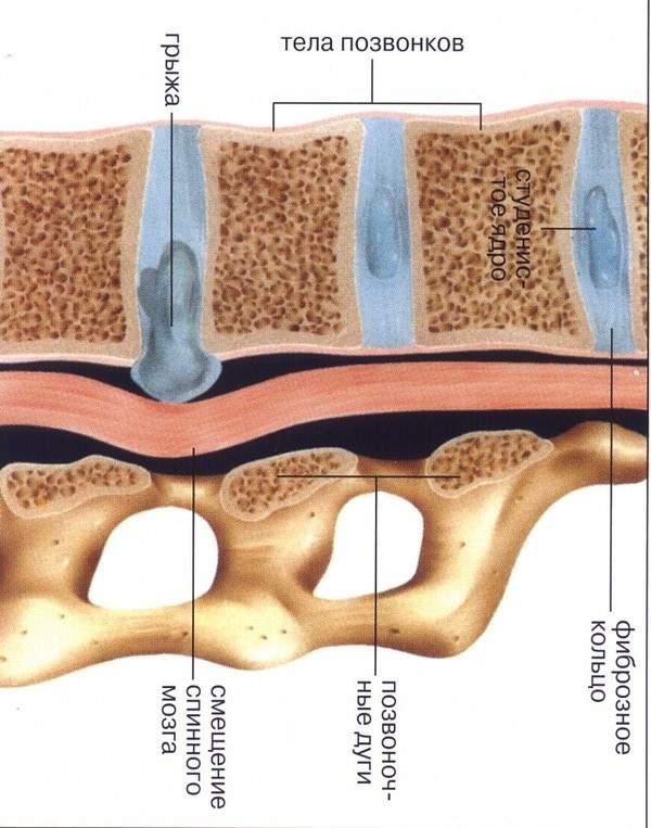 Комплексное лечение грыжи поясничного отдела позвоночника