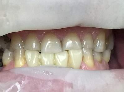 1122 X 840 133.3 Kb Скрип зубов ночью